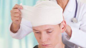 آسیب سر چیست ؟ چه عواملی سبب آسیب به سر می شوند؟