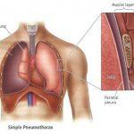 علل و علائم پنوموتوراکس چیست و چگونه پنوموتوراکس را درمان کنیم؟