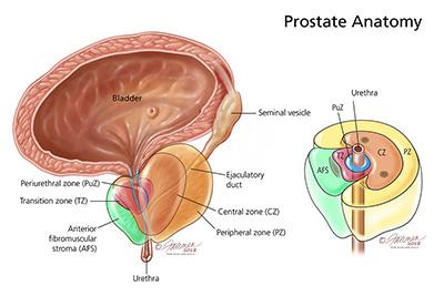 پروستاتیت .