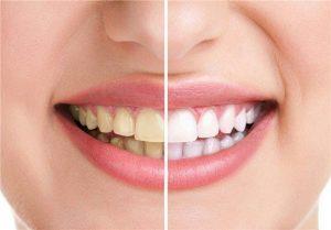 سفید کردن دندان ها بدون هیچ گونه هزینه ای