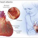 ۷ علائم حمله قلبی که شما باید درباره آن بدانید
