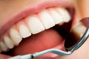 آشنایی با  بدترین غذاها برای دندان های شما که آسیب زننده هستند.