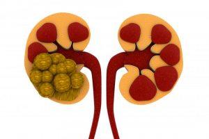 ۲ روش دفع سنگ کلیه با استفاده از دارو های خانگی و طبیعی
