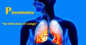 درمان پنومونی با استفاده از روش های خانگی آسان و مفید