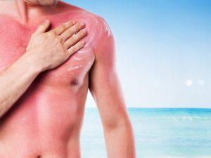 روغنهای ضروری برای آفتاب سوختگی : نکات و دستورالعمل استفاده