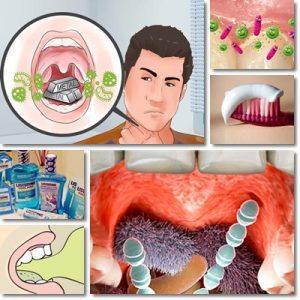 طعم بد در دهان – علائم، علل، درمان های خانگی، و نکات پیشگیری