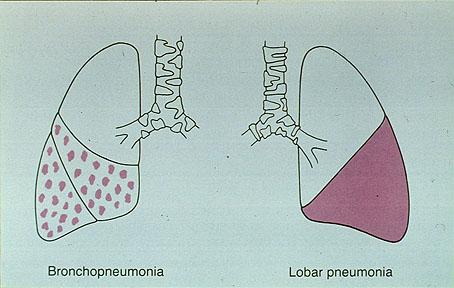 برونکوپنومونی