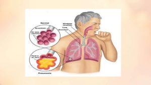 برونکوپنومونی چیست و درمان آن چگونه است ؟