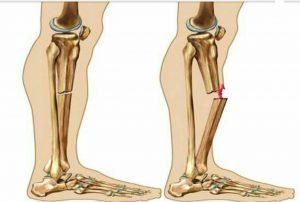 آشنایی با علل و علائم پوکی استخوان و نحوه ی درمان پوکی استخوان