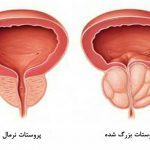هر آنچه باید در رابطه با سرطان پروستات بدانید! علل , علائم و درمان