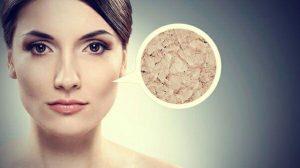 در زمستان خشکی پوست را با این روش ها درمان کنید!