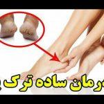 آشنایی با ۸ درمان خانگی موثر برای رفع ترک پا